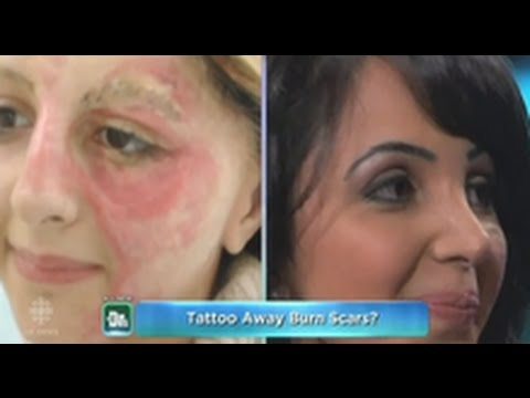 Tattoo Artist Uses Ink To Cover Burn Victims Scars